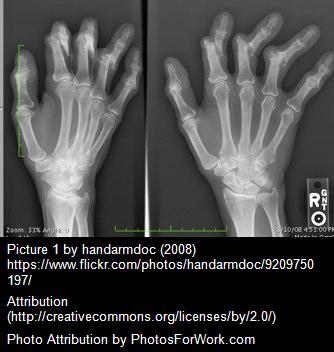 Arthritis 2